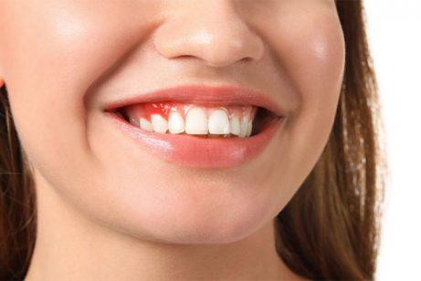 How to treat gum disease