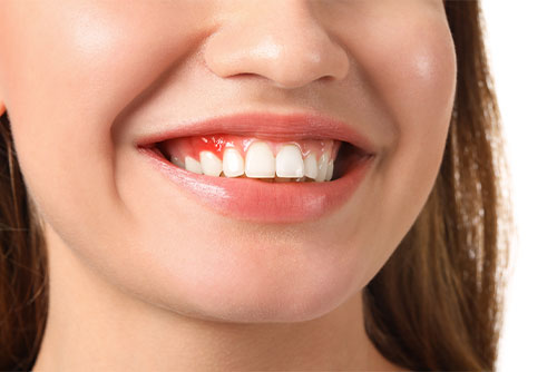 How to treat gum disease